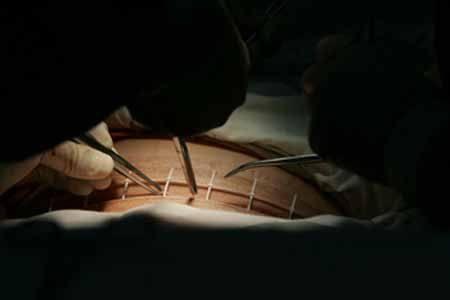 你走进了剖腹产的误区?12个剖腹产步骤你不得不知